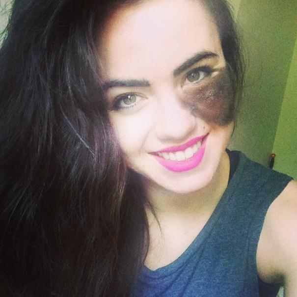Cassandra, la chica con la mancha en la cara