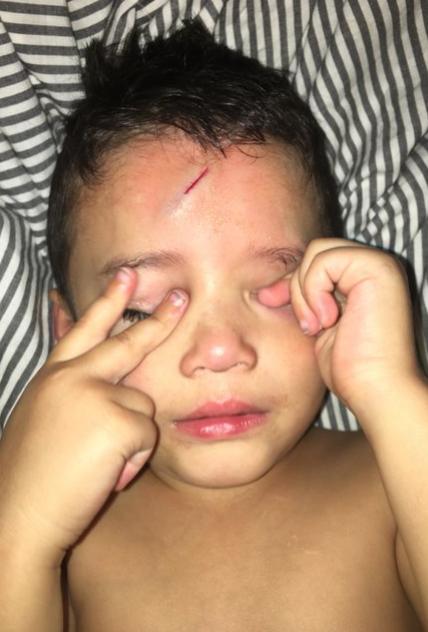 Así arregló esta madre la cicatriz de su hijo