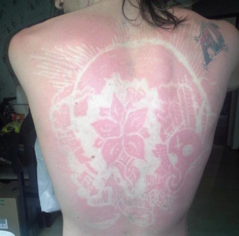 Moda del sunburnart
