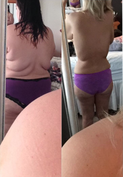 Mujer pierde 70 kilos