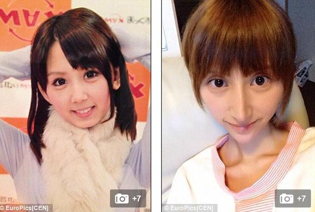 Una chica se opera tantas veces que termina pareciéndose al elfo de Harry Potter