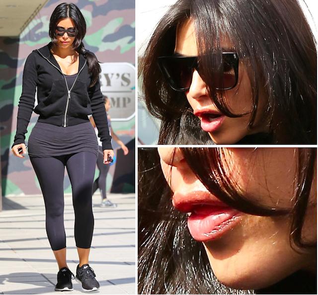 ¿Se ha vuelto a operar Kim Kardashian?
