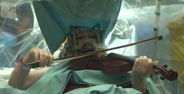 Una mujer toca el violín mientras... ¡le operan el cerebro!