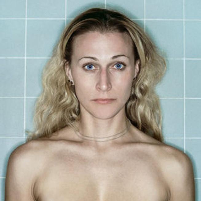 Las asombrosas fotografías que documentan el cáncer de mama