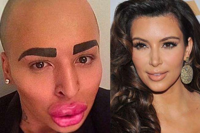 Un chico se ha gastado 120.000 euros para ser 'igualito' a Kim Kardashian