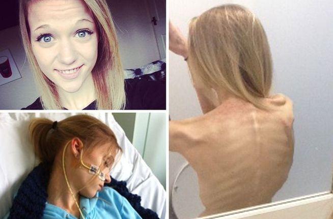 Instagram la volvió anoréxica