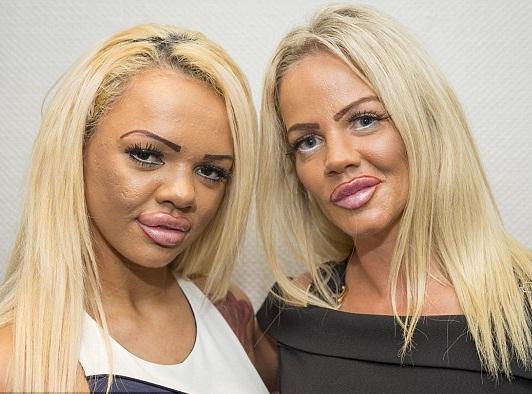 Madre e hija adictas a la cirugía