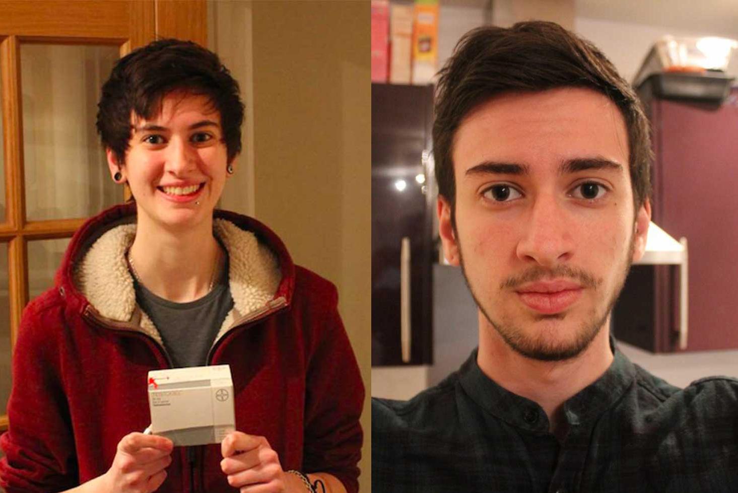 El proceso de cambio de este joven transgénero foto a foto
