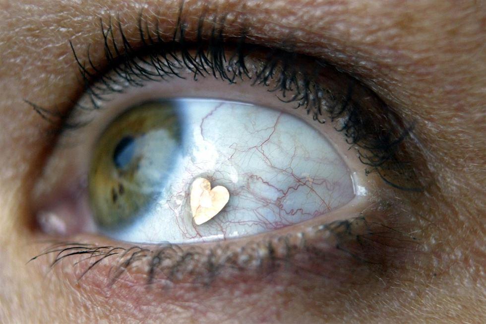 La peligrosa moda de las joyas en el ojo