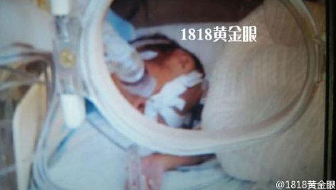 Bebé al que habían dado por muerto comienza a llorar justo antes de incinerarlo