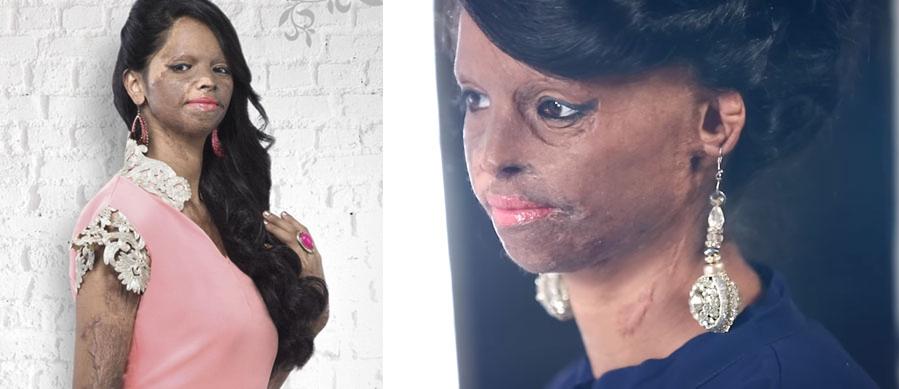 Esta superviviente a un ataque de ácido es la imagen de una firma de moda