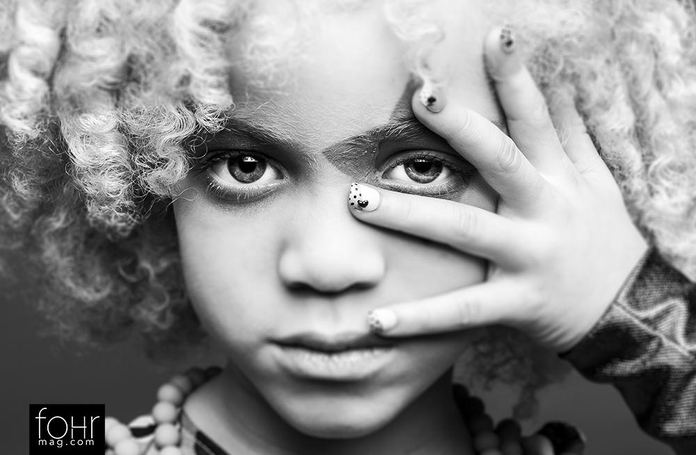 La niña negra albina que arrasa en las revistas de moda