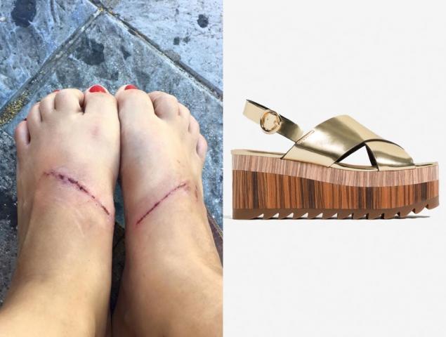 De PiesEstarguapas En Provocan Zara Quemaduras Los Sandalias Que Las BxoCeWrd