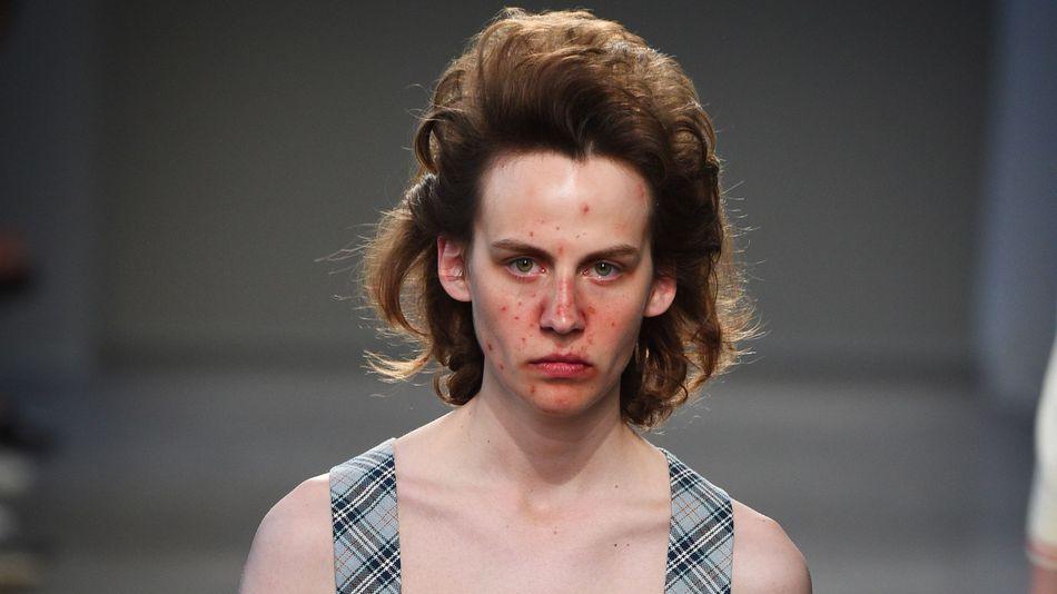 El acné, la última tendencia en las pasarelas