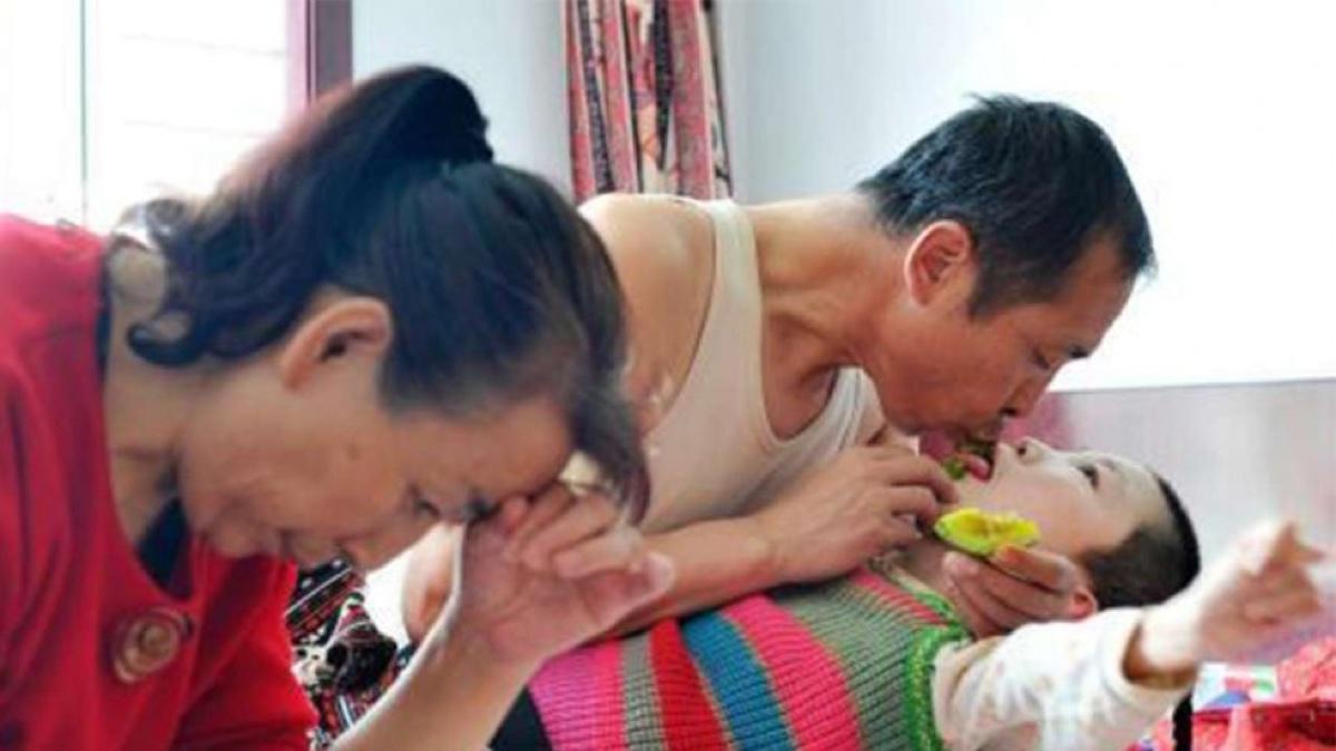 Estos padres llevan 16 años alimentando a su hija adoptiva con la boca