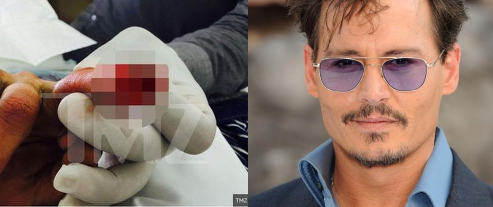 El dedo cortado de Johnny Depp tras una pelea con Amber Heard