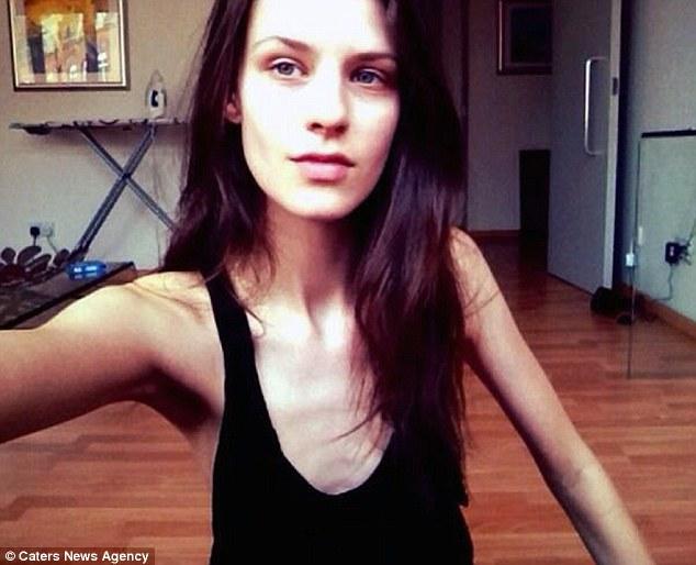 Esta modelo culpa a la industria de la moda de su anorexia
