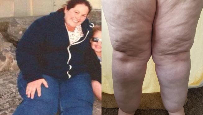 Una extraña enfermedad hace que sus piernas pesen 25 kilos cada una