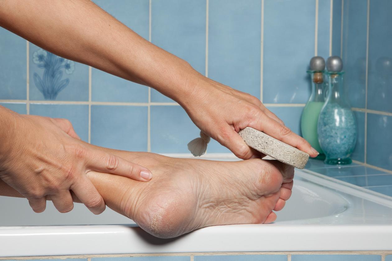 trucos para los callos de los pies