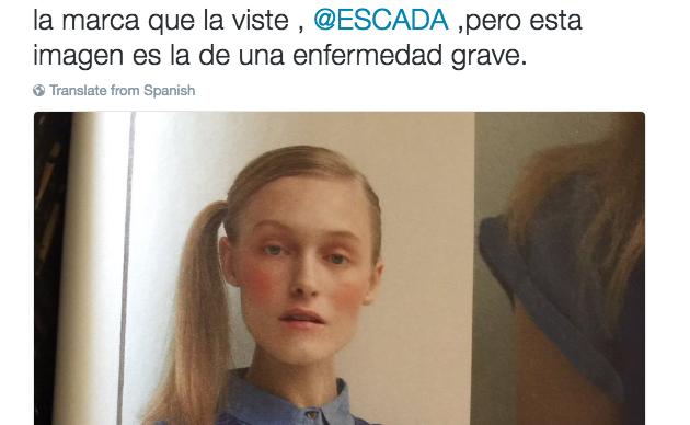Julia Otero denuncia en Twitter la foto de una modelo extremadamente delgada