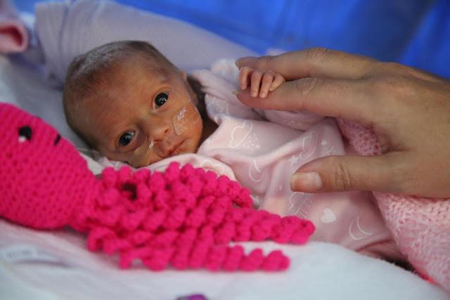 Así es como estos pulpos de lana pueden ayudar a los bebés prematuros