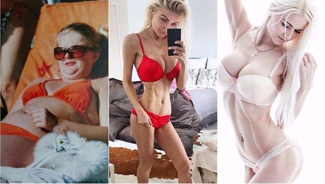 Esta mujer sufrió obesidad, después anorexia y ahora, se parece a Barbie