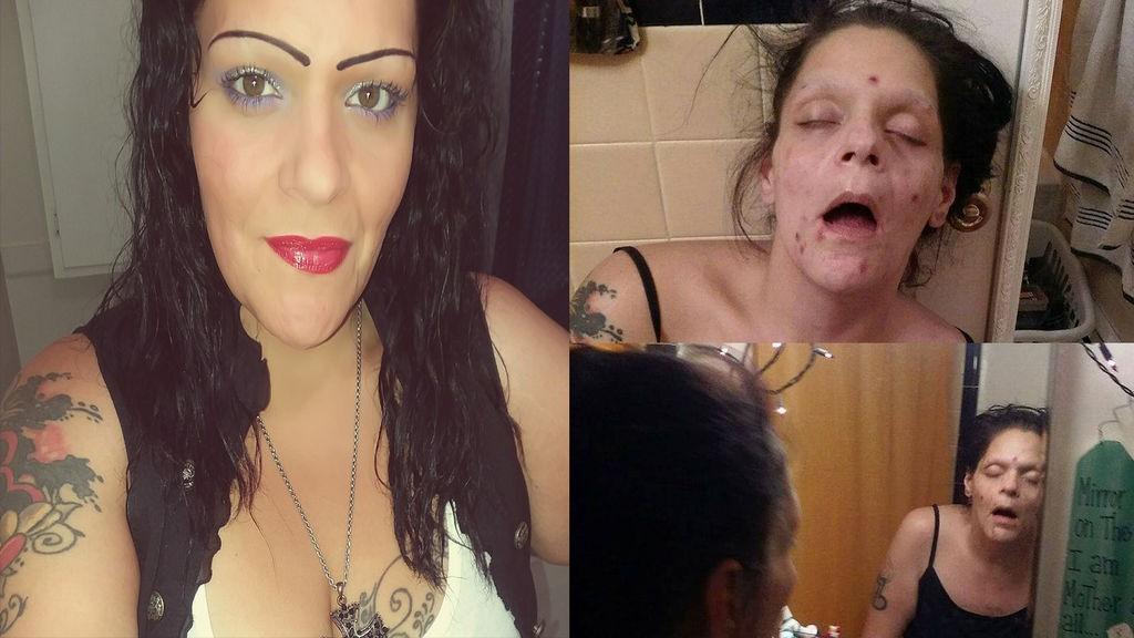 Comparte sus fotos de cuando era heroinómana para concienciar a la población