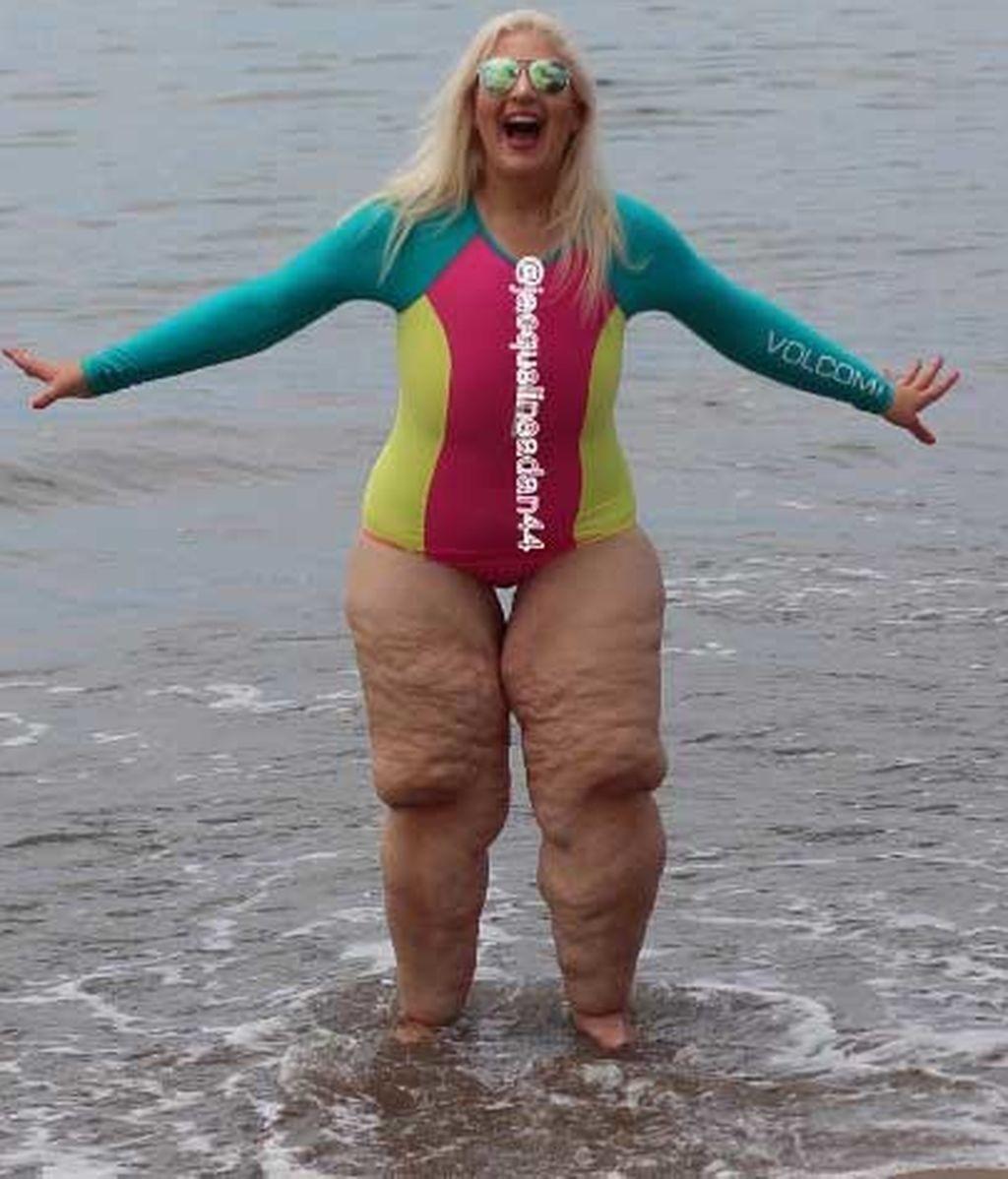 bañador tras perder 158 kilos