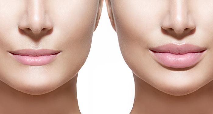 dar volumen a los labios