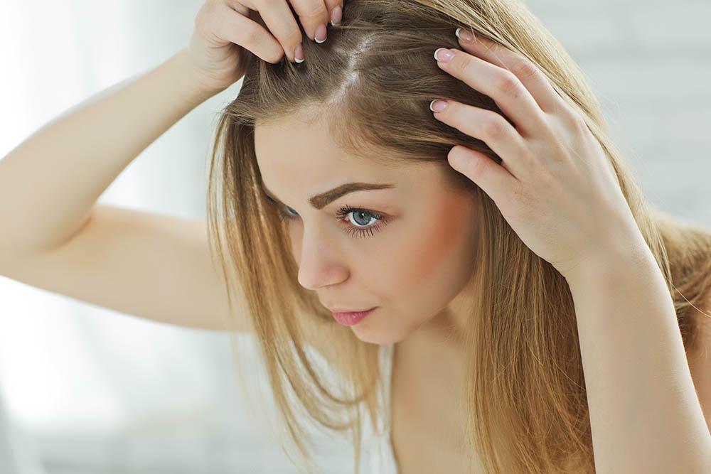 tratamientos naturales pelo caida