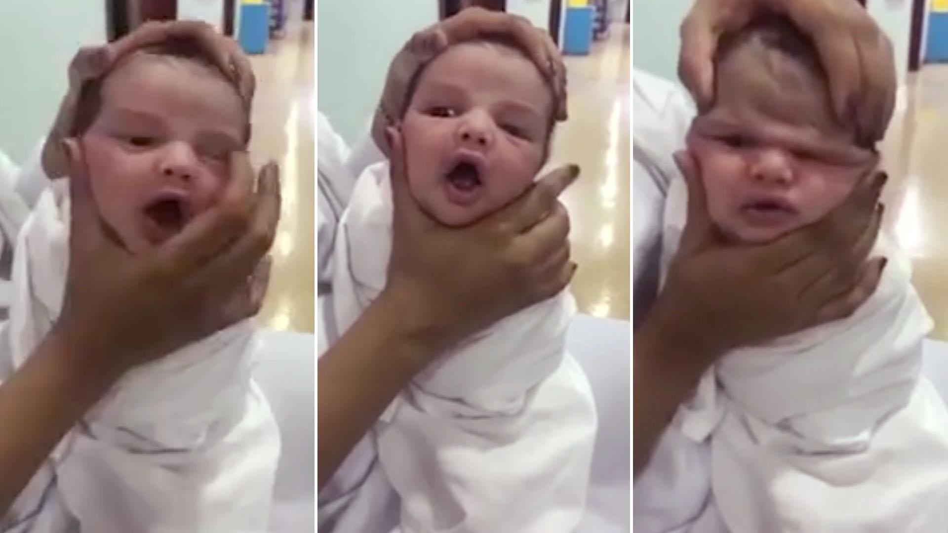 Despedidas del hospital por deformar la cara de los bebés por diversión
